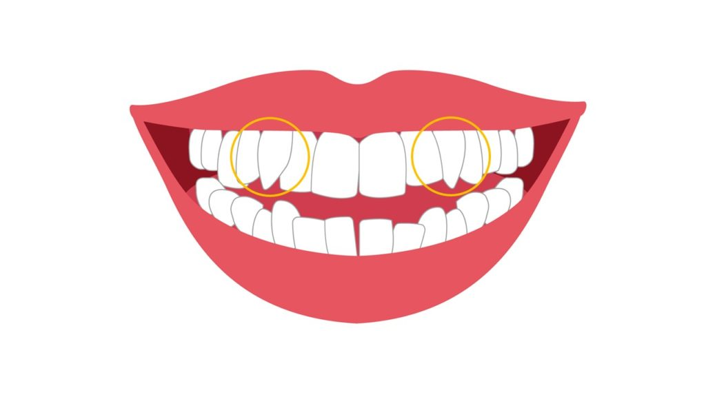 八重歯のイメージ